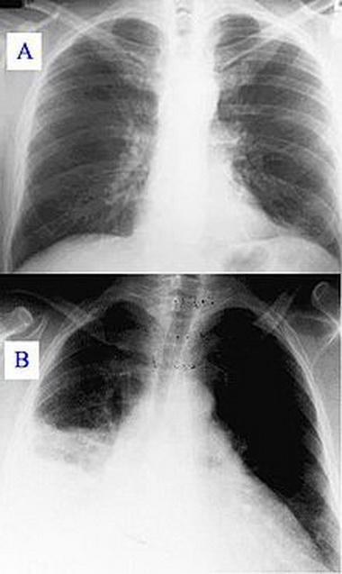 Аспирационные пневмонии