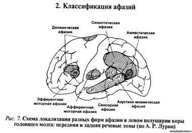 Клиника субарахноидально-паренхиматозного кровоизлияния без дислокационного синдрома
