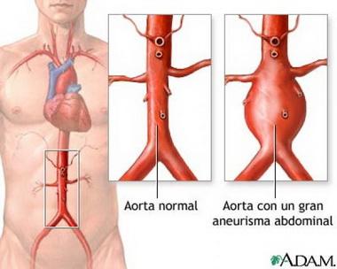 Клинико-анатомическая классификация субарахноидальных кровоизлияний