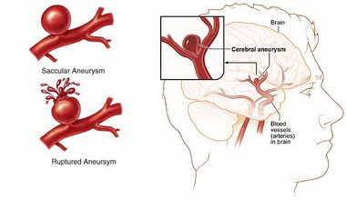 Основные принципы интенсивной терапии пациентов с нетравматическими субарахноидальными кровоизлияниями