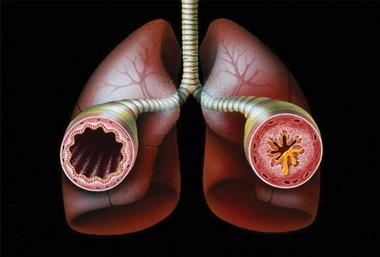 Экстренная терапия синдрома бронхиальной астмы