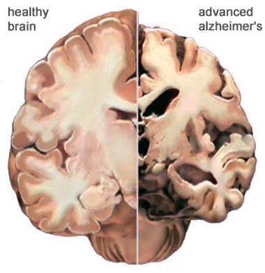 Подострые и хронические формы расстройства сознания