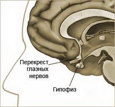 Диэнцефально-катаболический синдром