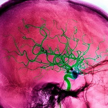 Современные представления о развитии острого ишемического инсульта