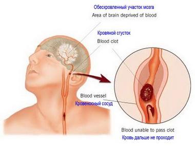 Терапевтические стратегии в острейшем периоде ишемического инсульта