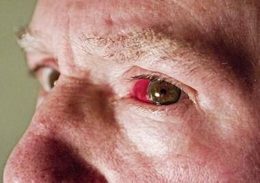 Клиника субарахноидально-паренхиматозного кровоизлияния с дислокационным синдромом