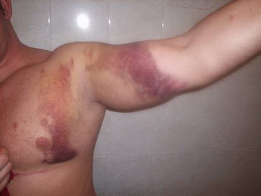 Субарахноидально-вентрикулярное кровоизлияние с окклюзионным синдромом