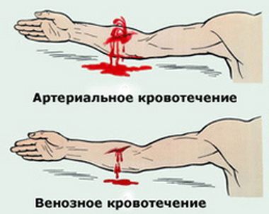 Классификация тяжести состояния больных  с субарахноидальным кровоизлиянием в остром периоде Hunt-Hess