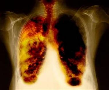 Патогенез периферической формы дыхательной недостаточности сводится к следующим основным положениям
