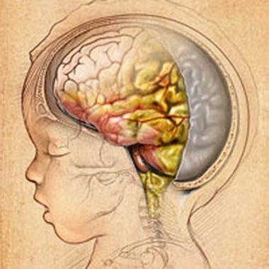 Менингеалыю-фокальный синдром