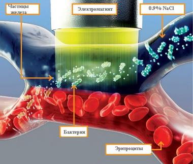 Основные направления интенсивной терапии септического шока