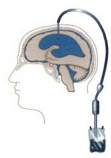 Показания для неотложной нейрохирургической консультации