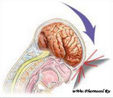 Показания для консервативного лечения ушибов головного мозга тяжелой степени
