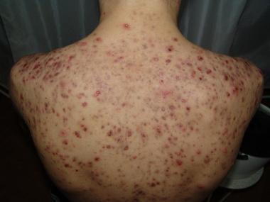 Хроническая менингококцемия